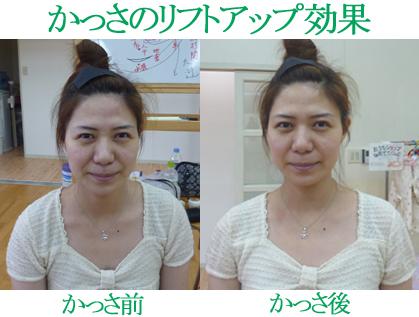 かっさの小顔効果・リフトアップ効果