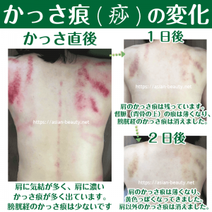 あざや内出血のようなかっさの痕が消える過程